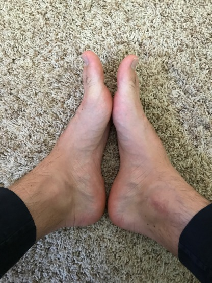 You can see the metatarsal on my left foot is significantly thicker than that of my right foot.